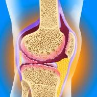 Как да се справите с шипове и вода в коляното