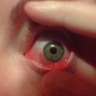 Алергични конюнктивити