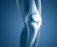 Износване на колянната става и възможности за нейното възстановяване