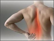 Най-чести причини за болки в гърба и кръста